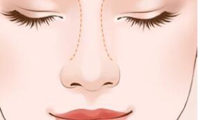 假体隆鼻的术后效果究竟是怎样的