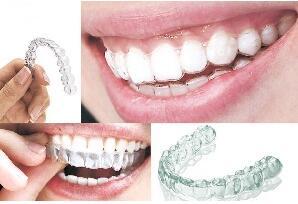 如何正确的进行牙齿矫正
