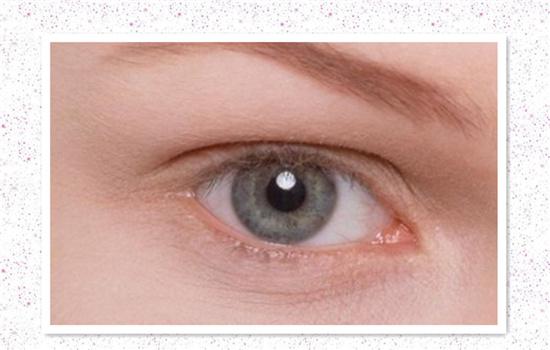 水泡眼矫正术的几种常见的方法
