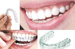 牙齿矫正方法是针对不同的人吗