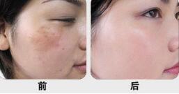 开封华亿E-light强脉冲光案例,让脸部的肌肤恢复光滑美白的形象