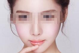 在什么情况下做吸脂瘦脸比较好呢