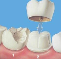 种植牙手术前6个准备