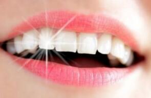 冷光美白牙齿有什么优点呢