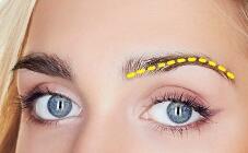 眉毛种植术的过程是什么样的