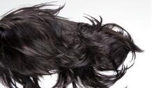 头发种植前要记住的七大事项