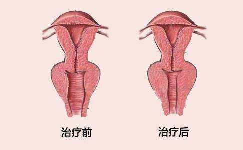 大连沙医生阴道紧缩术后多久可同房
