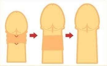 大连沙医生阴茎延长术有五大副作用