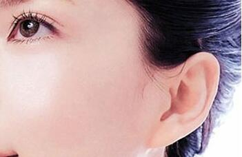 大连沙医生杯状耳整形2-3个月可恢复