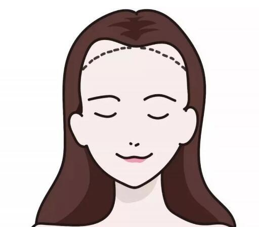 发际线对人面部美观度影响是怎样的