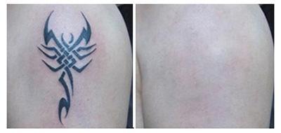 激光洗纹身有副作用吗