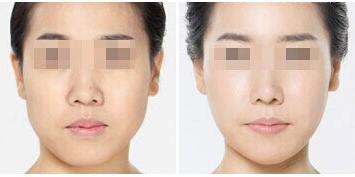 做面部吸脂手术需要注意哪些事项