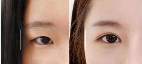 双眼皮手术后护理四大注意事项