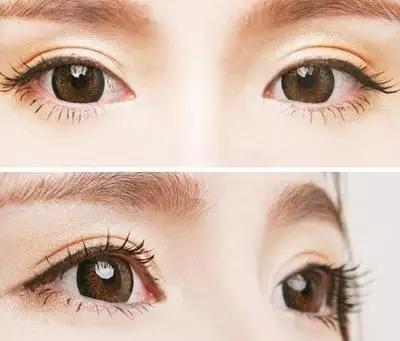 双眼皮手术会留下后遗症吗