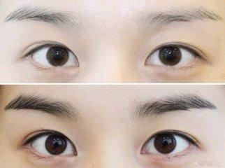 山东临沂卫康医学美容中心眉毛种植会留下后遗症吗