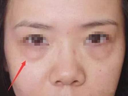 锦州医疗美容医院祛眼袋常用的四种方式,你适合哪种