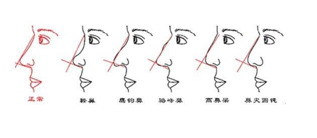 鹰钩鼻矫正3种手术方法