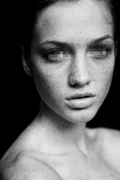 黄褐斑常见的治疗方法有哪些