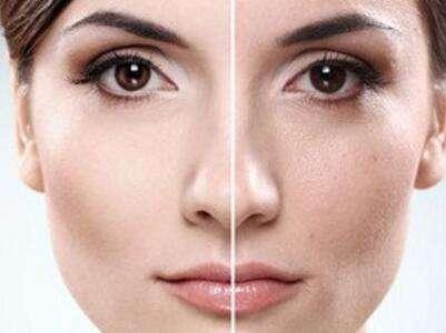 彩光嫩肤可以收缩毛孔吗