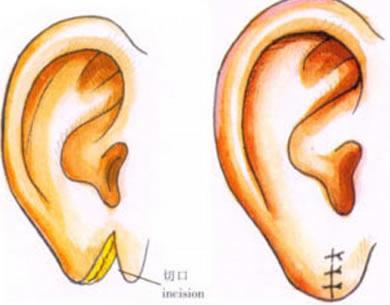耳垂再造需要多少钱