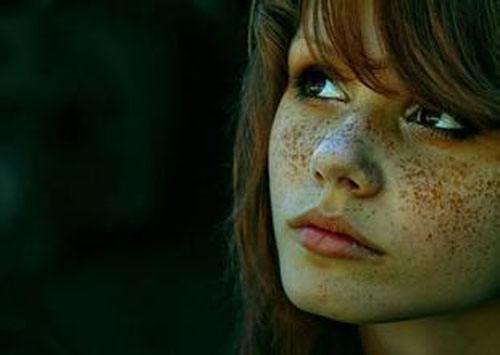 光子嫩肤袪雀斑的优势