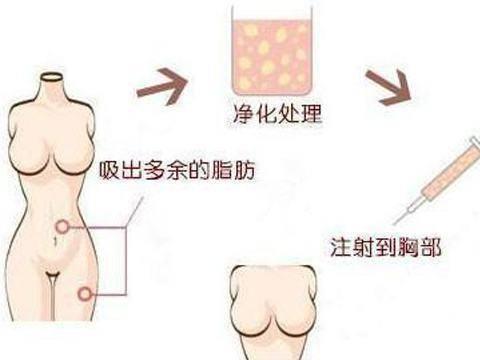名医解读:北京京美整形刘成胜和他研究20年的自体脂肪隆胸