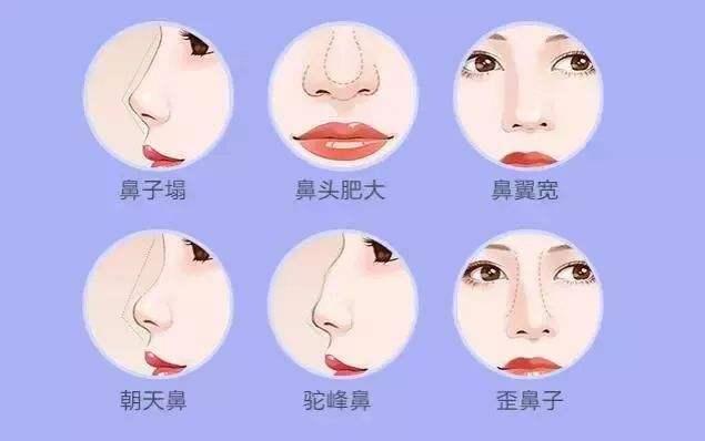 锦州医疗美容全鼻整形三大技术核心