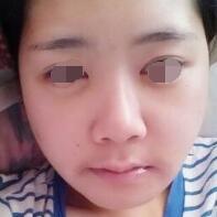 信阳金霞医疗美容精细下颌角整形,做完之后大脸变小脸