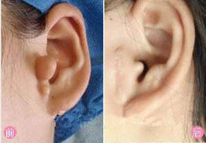 副耳切除的注意事项