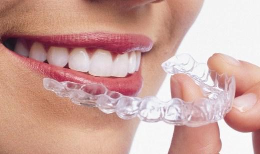 牙齿矫正有哪几种方法