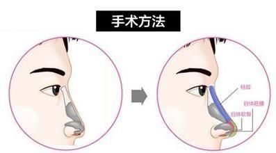 锦州医疗美容医院鼻小柱延长手术优势