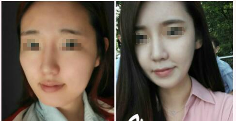 名医解读:北京整形医院王侠的下颌角整形