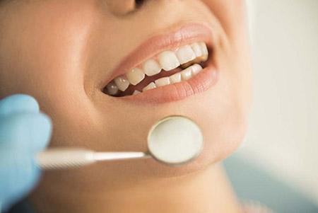 种植牙优点