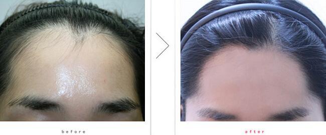 头发种植安全吗