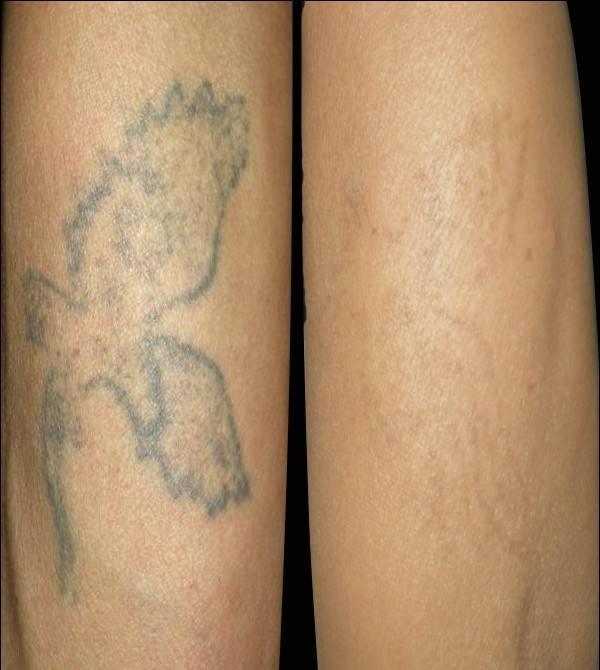 洗纹身的注意事项
