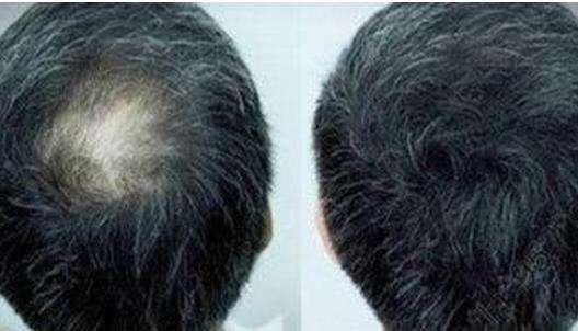 植发后多久可以洗头