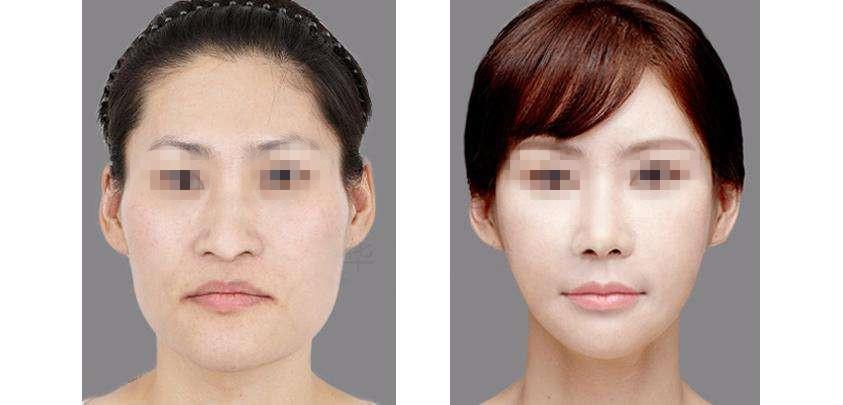 锦州医疗美容改脸型手术的特点