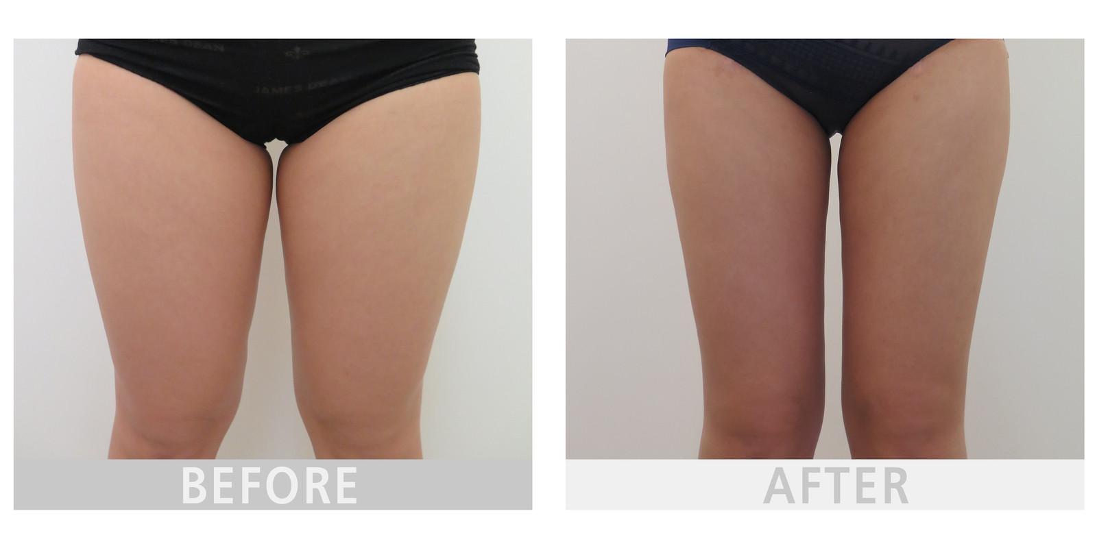 吸脂减肥瘦大腿多久恢复