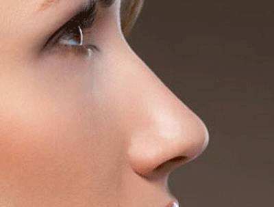 假体隆鼻效果自然吗
