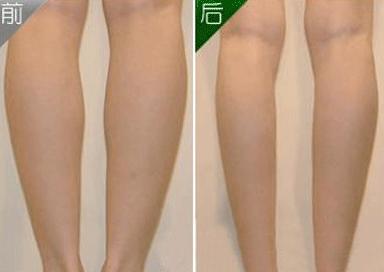肉毒素瘦小腿的优势