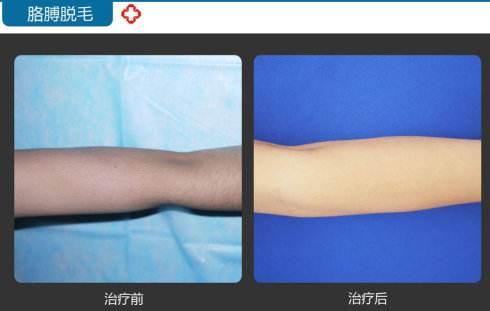 锦州医疗美容激光手臂脱毛的特点