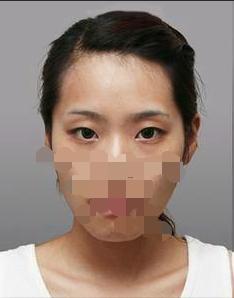 广州天姿切开双眼皮手术,世界又变大了好多