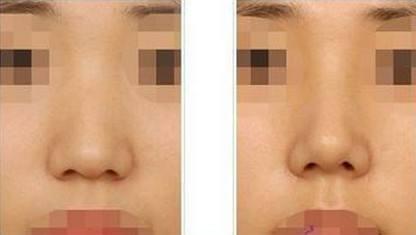锦州医疗美容人中加深术手术方式