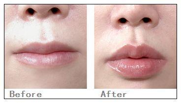 锦州医疗美容哪些人适合做唇珠成形