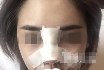 广州天姿鼻翼缩小手术,鼻子又精致了好多