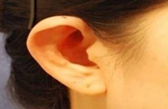 锦州医疗美容招风耳矫正手术会不会很痛