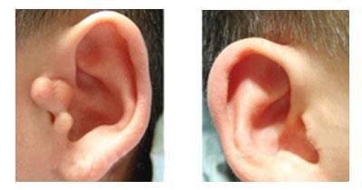 临沂卫康哪些人不适合做副耳切除手术