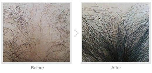 阴毛种植的优势