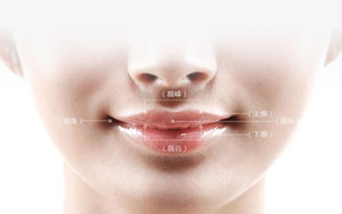 口角成形术后三个月可以恢复自然