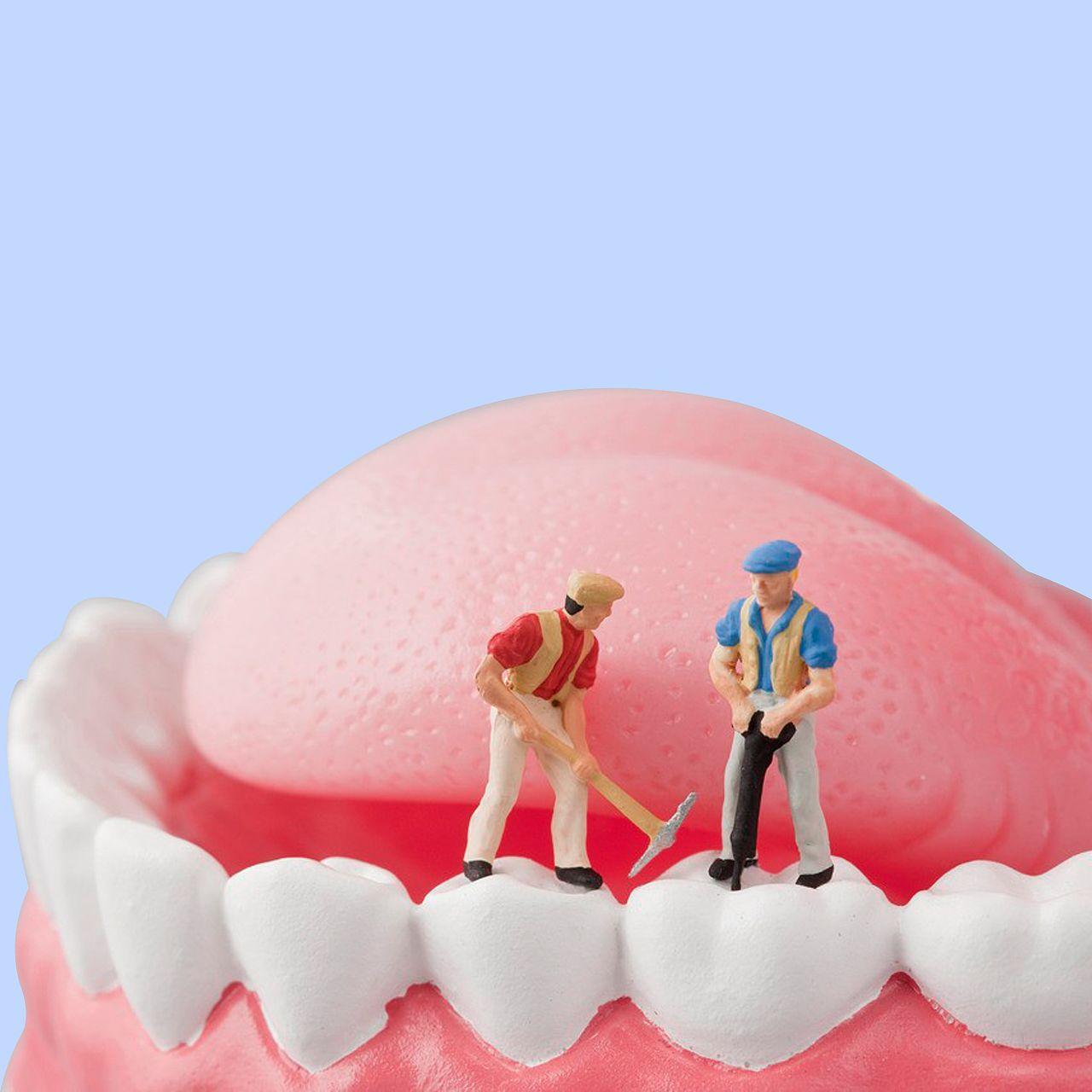 锦州医疗美容种植牙好处